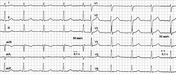 кардиограмма здорового человекачеловека 25мм с 5мм мв